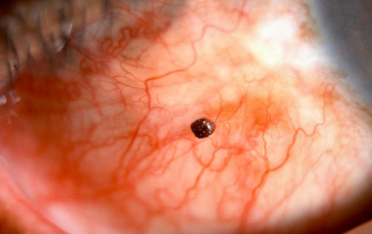 Head of ant that bit man on the eye remains wedged in his eyeball